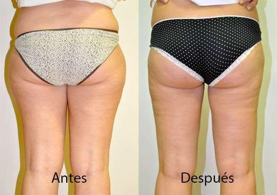 Liposucción, antes y después