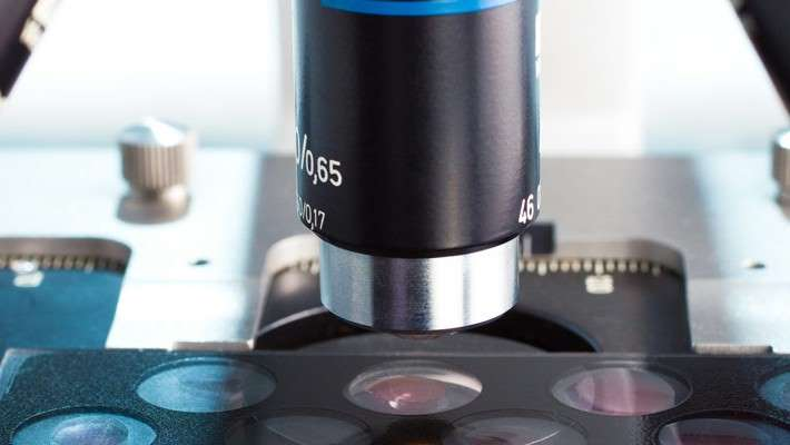 ¿Podemos evitar biopsias de próstata?