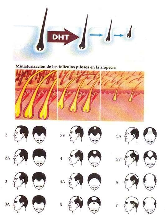 Ruta alopecia hombres