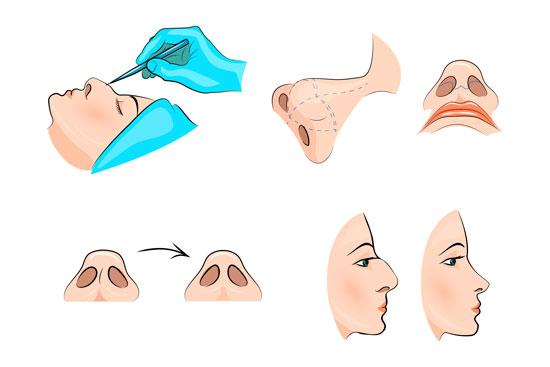 Diagrama rinoplastia