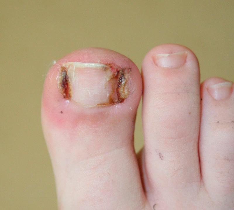 El hongo entre los dedos de los pies el tratamiento por la agua oxigenada