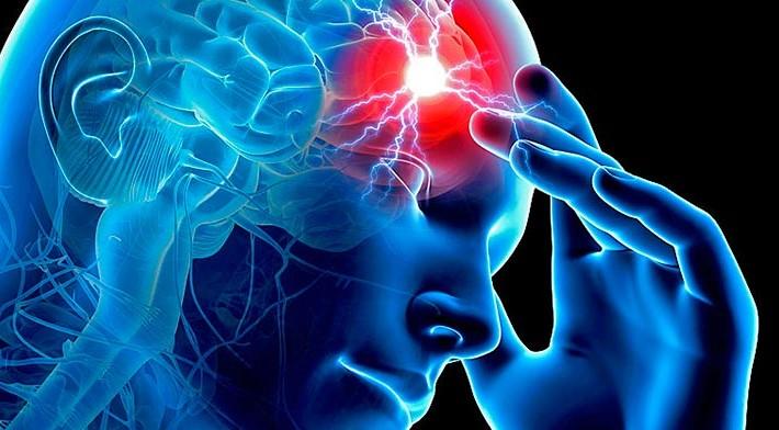 ¿Cómo se puede prevenir un ictus cerebral?