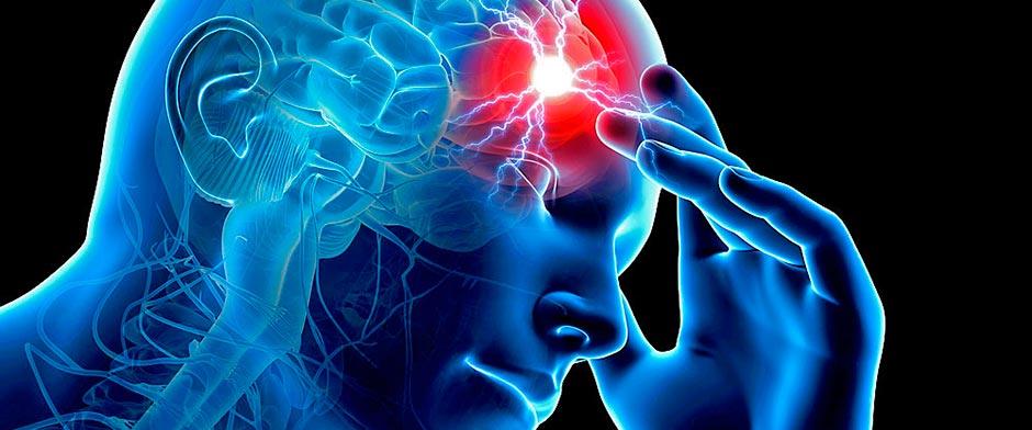 prevenir-ictus-cerebral