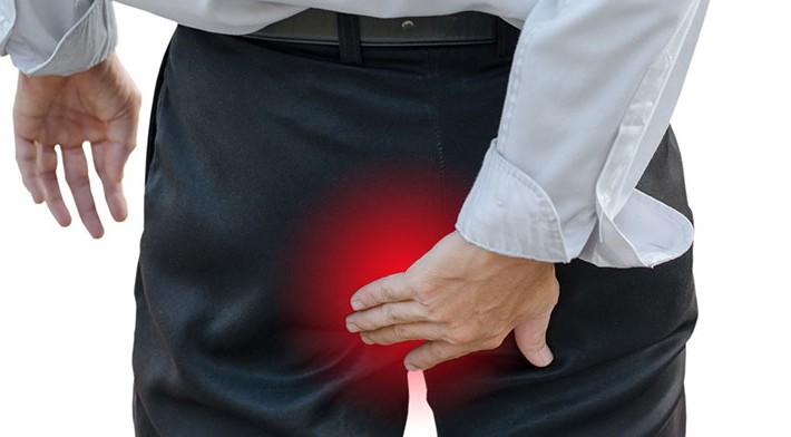 Causas, diagnóstico y tratamiento de las Hemorroides