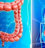 Síntomas y diagnóstico del cáncer intestinal