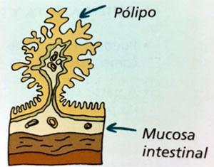 polipo-cancer-colon