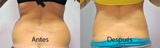 Eliminar grasa Antes y Después