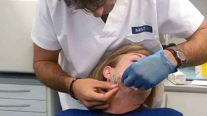 Técnica de Mini-hilos faciales. ¡Un remedio para la flacidez que funciona!