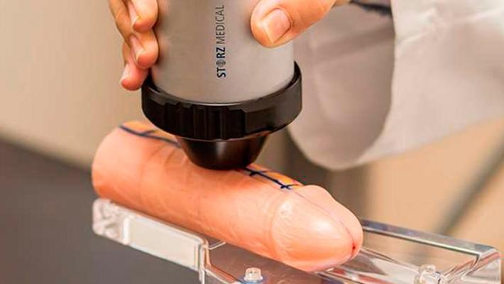 Ondas de Choque para curar la Disfunción Eréctil