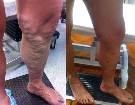 Operación de varices - Antes y después