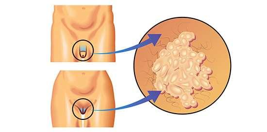 como se contagia virus del papiloma humano en mujeres