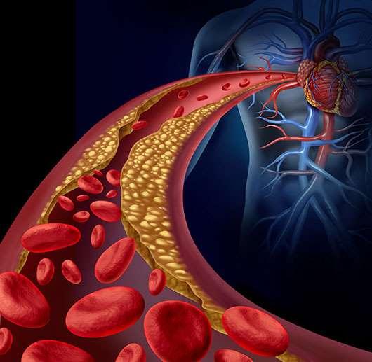 Arterias y colesterol