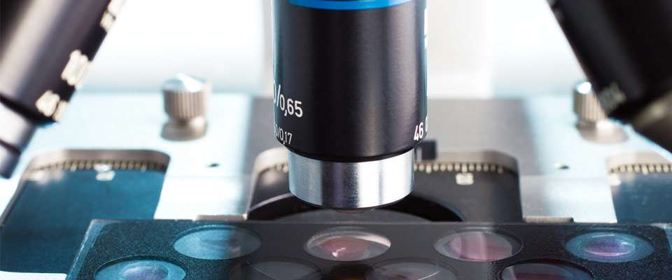 Riesgos de las biopsias de próstata
