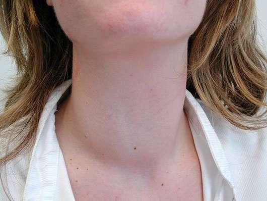 Cuello delgado tiroides