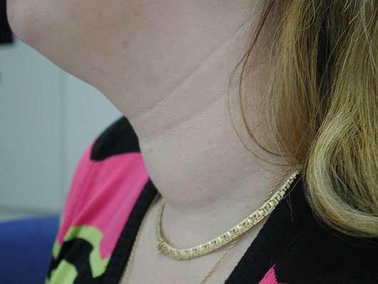 Cuello inflamado por tiroides