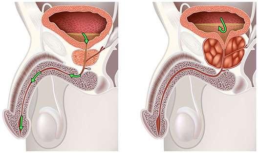 Qué es la prostata