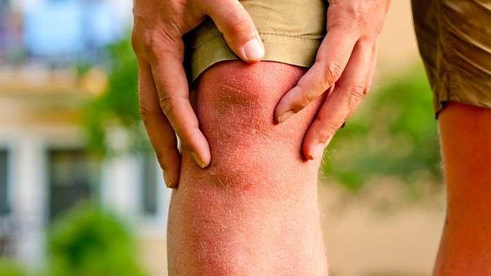 ¿Qué es la cirugía artroscópica de rodilla?