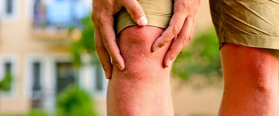 Artroscópia de rodilla