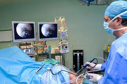 Cirugía artroscópica, endoscopia.