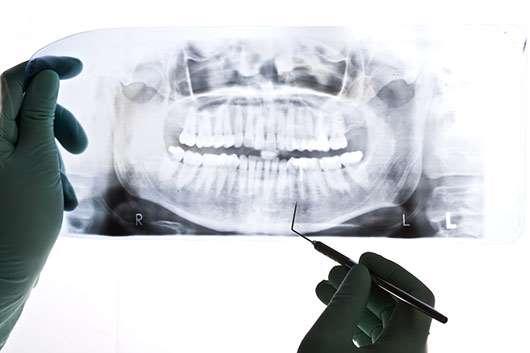 Estomatólogo viendo radiografía dientes