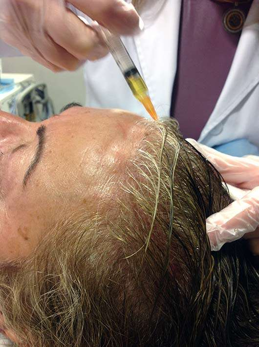 Curar la alopecia con plasma enriquecido en plaquetas