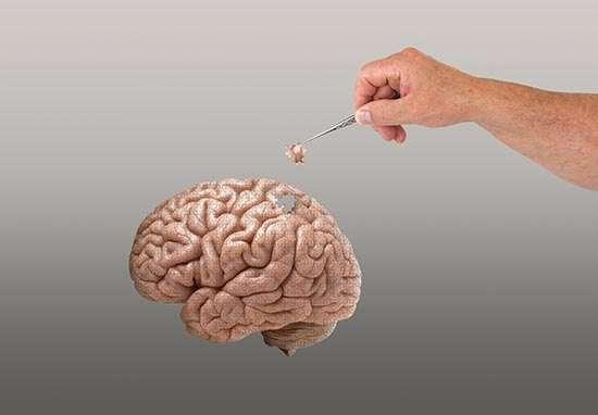 Alzheimer Estudio Zaragoza