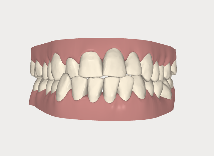 Invisalign - Captura 3D