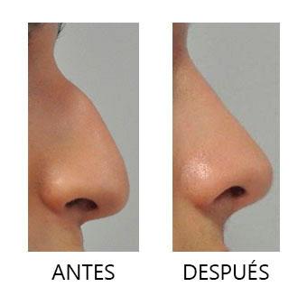 Rinoplastia | Antes y después