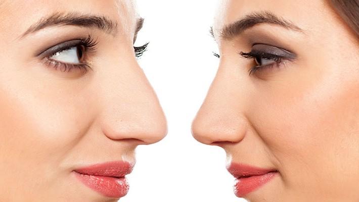 Rinoplastia: más cerca de la nariz que deseamos