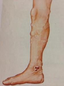 Ulceras-Varicosas-Tratamientos-cirugia