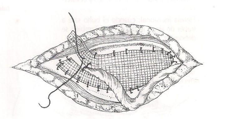 malla-hernias