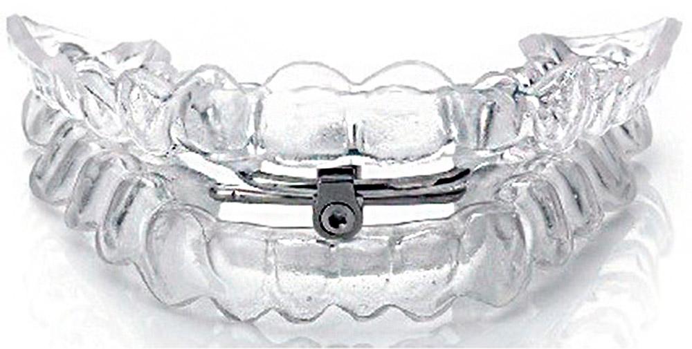 dam-apnea