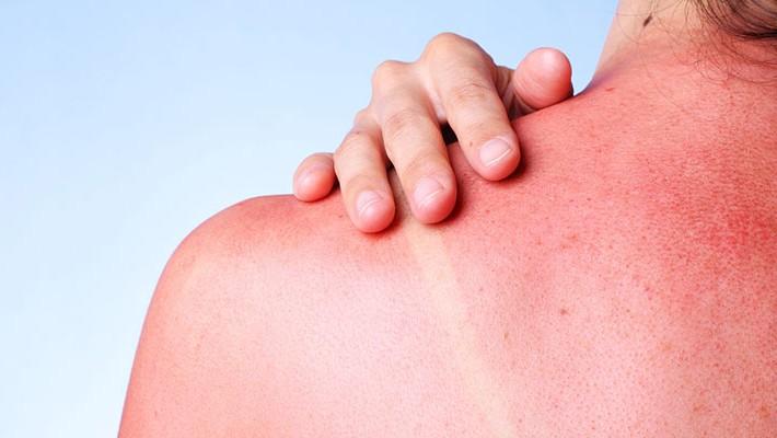Las enfermedades más comunes del verano y cómo prevenirlas