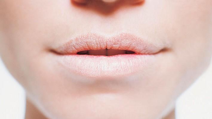 Causas y tratamiento de la boca seca, ¿se puede curar este síndrome?