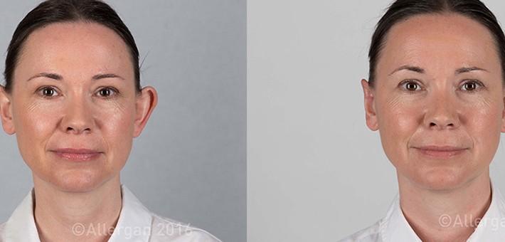 La solución más sencilla y eficaz para las orejas de soplillo