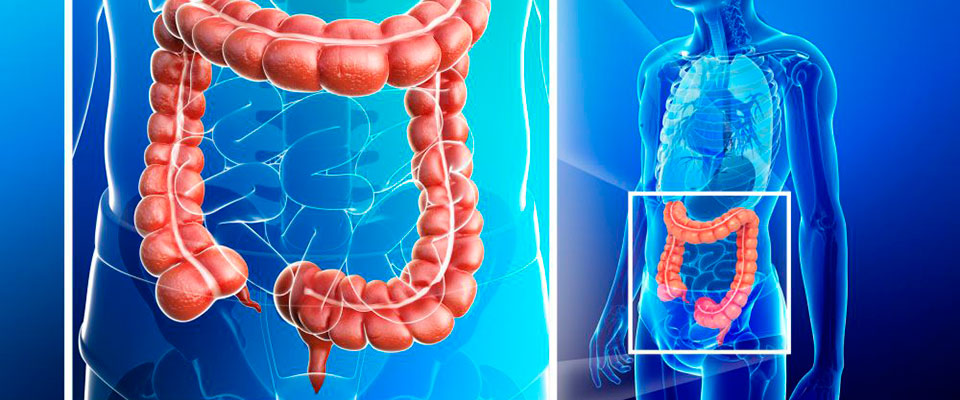 cuales son los sintomas de cancer intestinal