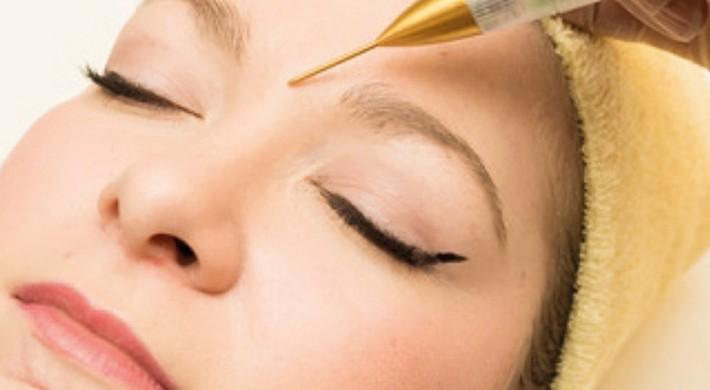 Eliminar imperfecciones de la piel es ahora más fácil que nunca
