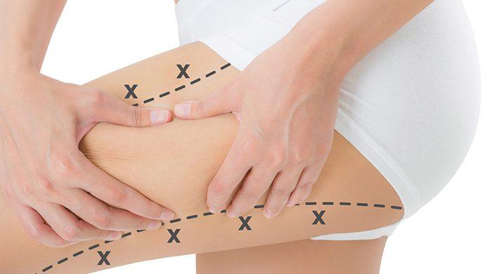 Liposucción, siempre en manos de un especialista