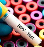 Virus del papiloma humano en hombres: Contagio, síntomas y tratamiento