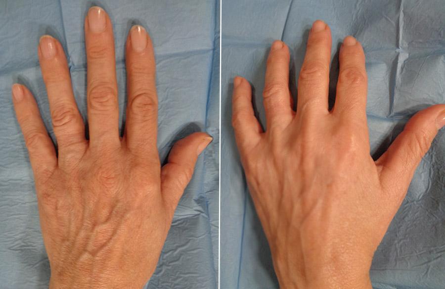 antes-despues-tratamiento-manos