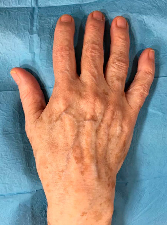 manos-envejecimiento