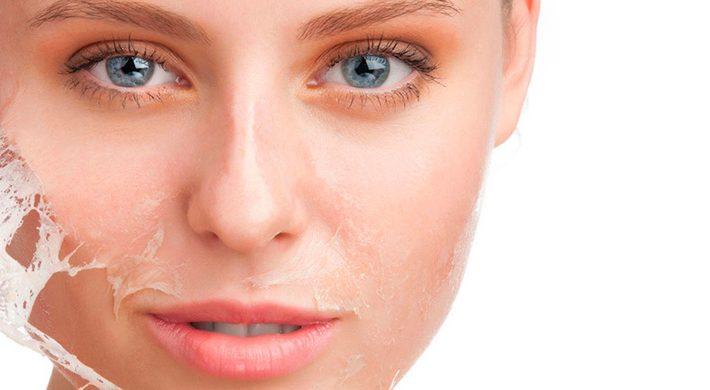 Peeling químico: Beneficios estéticos, pero también médicos