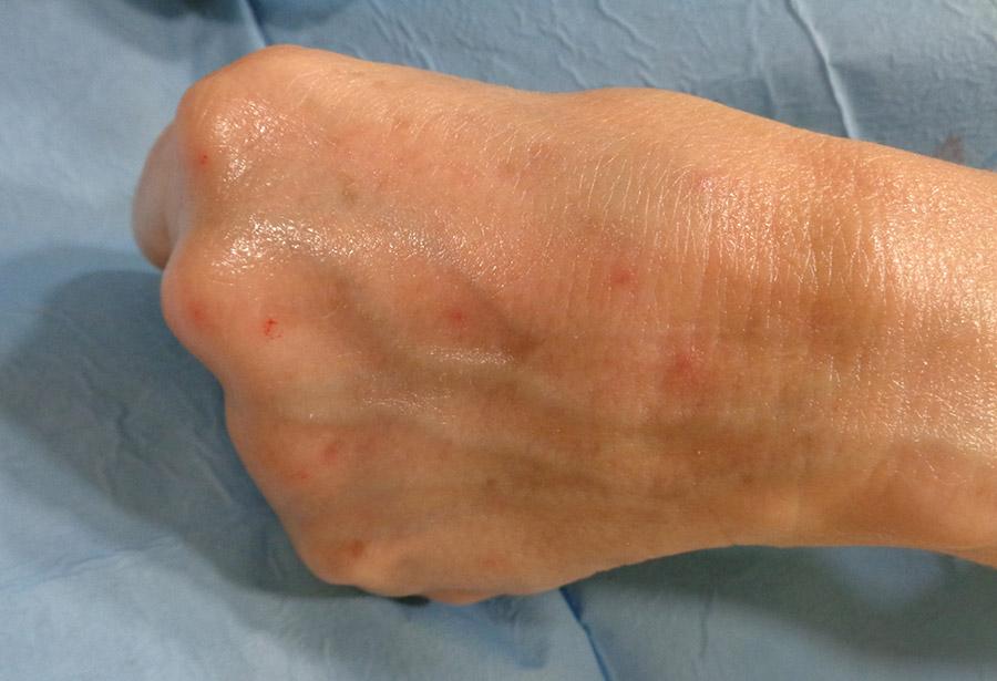 post-tratamiento-acido-hialuronico-manos