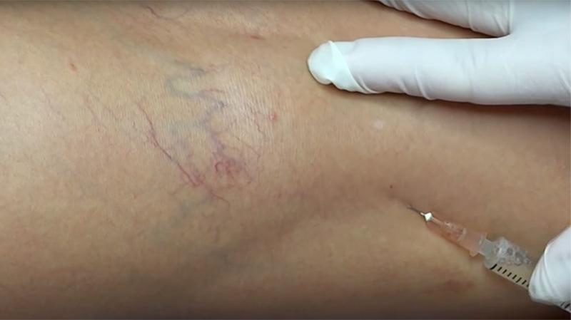 eliminar-aranas-vasculares-zaragoza