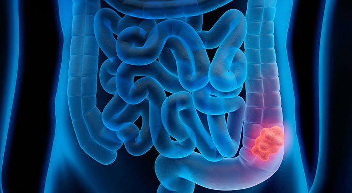 Diagnóstico y tratamiento del cáncer de colon: el cáncer digestivo más frecuente