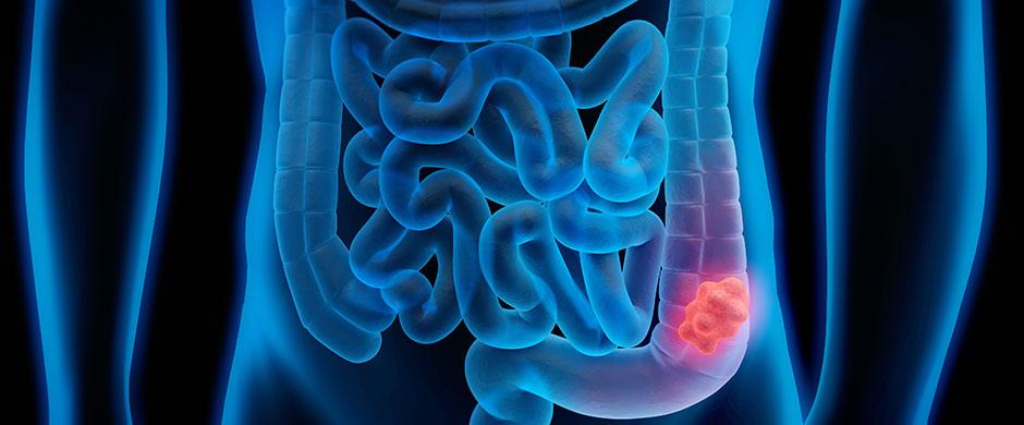 cancer-colon-zaragoza