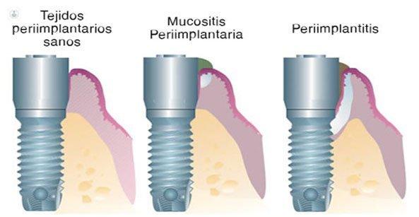 mucositis-periimplantitis