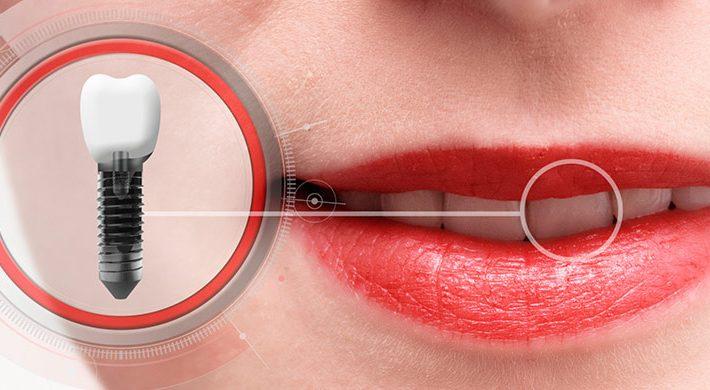 ¿Qué es la periimplantitis y cómo afecta a los implantes dentales?