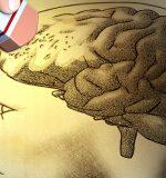 Marcapasos cerebral para retrasar el Alzheimer