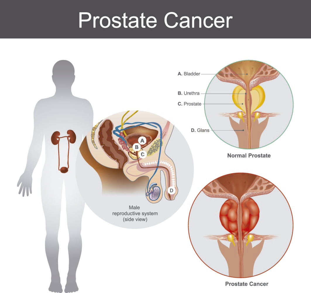 cancer de prostata vitamina d)